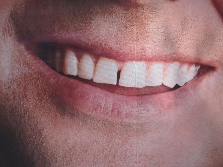 gap_tooth.jpg