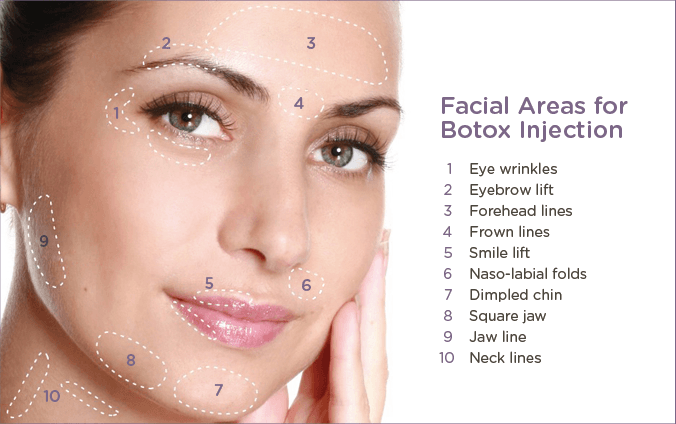 Botox_area_for_Injection.png