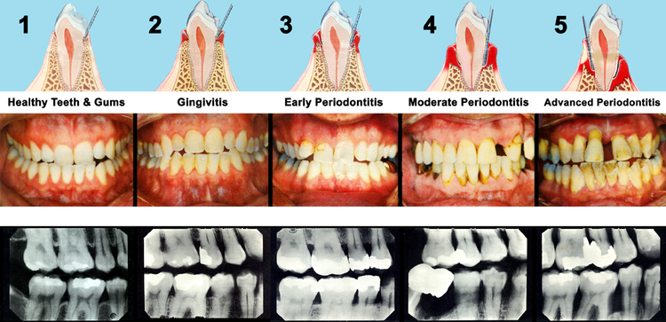 Stages_of_Periodontal_Diseases_png.png